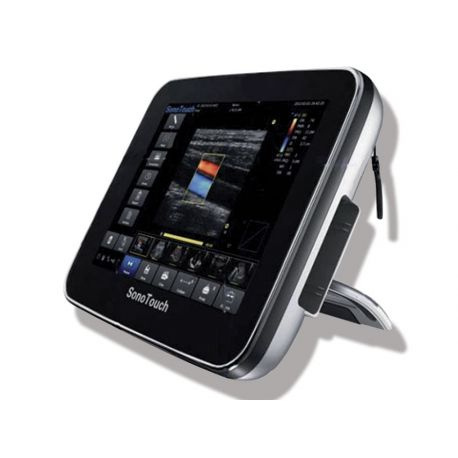 ULTRASONS COULEUR CHISON SONOTOUCH 30